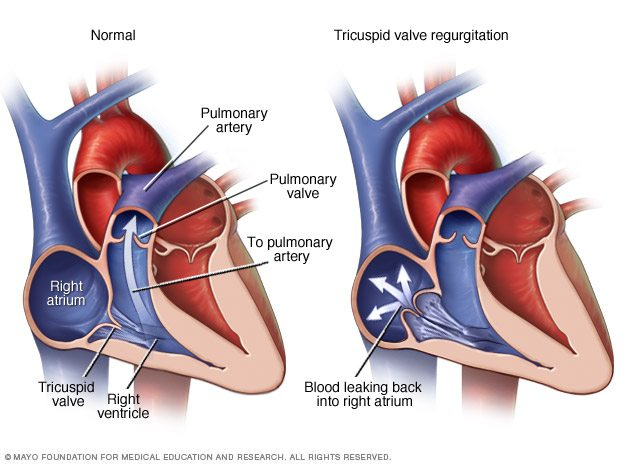Heart Valve Disorder - Valentino Cardiology Specialists